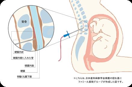 硬膜外麻酔の方法